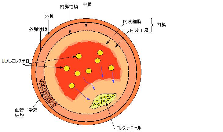 動脈硬化1